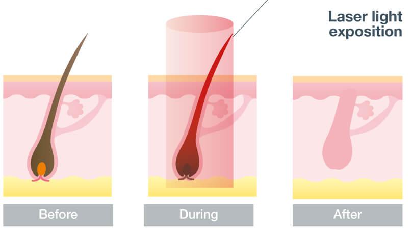 Laser Haarentfernung Sulingen