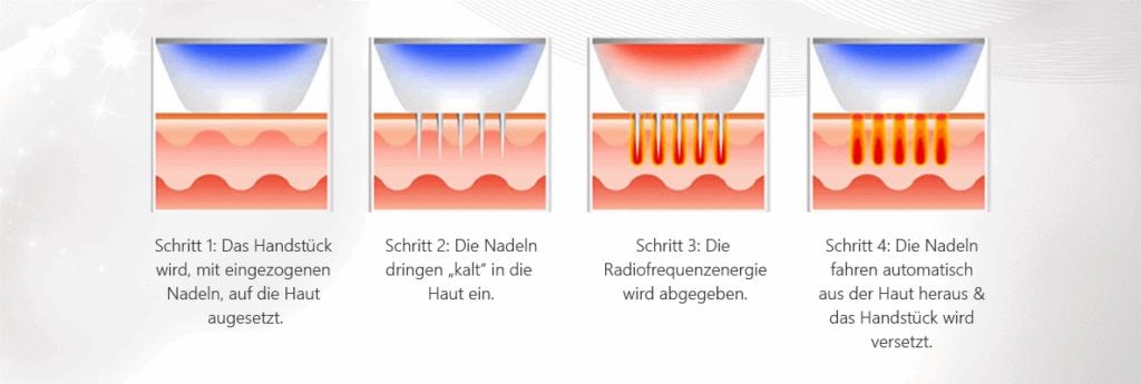 Microneedling Münster Verfahren